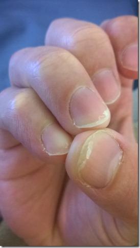 Bondi manicure